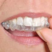 Top 4 Benefits Of Smile Correction With Invisalign