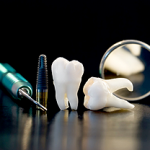 dental-implants-gaithersburg-md-rnd-dental-c6-150x150