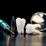 dental-implants-gaithersburg-md-rnd-dental-c6-150x150
