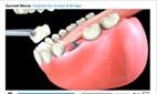 Dental-Videos1
