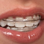 Learn More About Dental Implants Through the Dentist Office in Spring