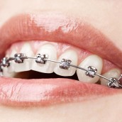 Reasons You Or Your Child May Need Braces In Orange Park