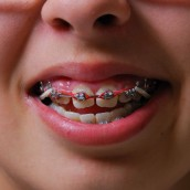 Do You Think You May Be A Candidate For Braces?