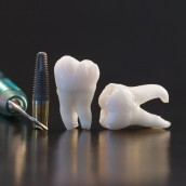 Implant Dentures in Phoenix Are an Option Everyone Should Consider