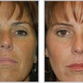 Botulinum Toxin Offers Impressive Results for Those With Facial Wrinkles