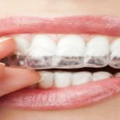 Information to Learn about Dental Checkups Roseburg Oregon