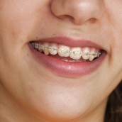 A Quality Dental Clinic in Minneapolis Can Help Improve Your Oral Health
