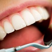 Practice Proper Oral Health Care in Fishers, IN