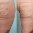 6 Ways to Make Varicose Veins Disappear from Your Life