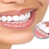 Reasons That Dental Crowns in Grand Island, NE Are Needed