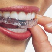 An Invisalign Dentist In Clifton Will Help Your Dreams Materialize