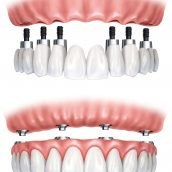 Is a dental bridge right for you?