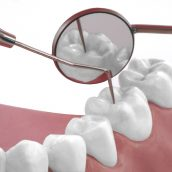 Are You in Need of a Composite Filling in Marion, IA? Make Sure You Pick the Right Dentist!