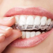 Straighten Your Smile with Invisalign in DC