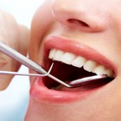 Why is Root Canal Therapy in New York Essential?