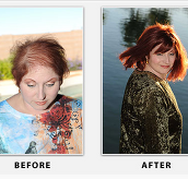 Questions and Answers About Best Hair Replacement in Phoenix
