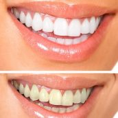 Why People Should Consider Teeth Whitening in Midwest City OK