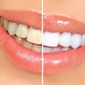 Why Invest in Professional Teeth Whitening in Exton, PA Today?