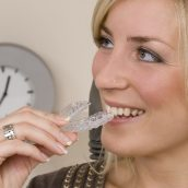 Tips for Wearing Invisalign in Annapolis