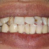 Two Important Questions Answered About Porcelain Veneers In Midwest City OK