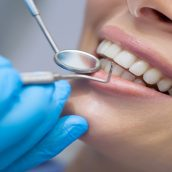 Benefits of Regular Dental Care in Laurel MS