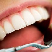 Improve Your Quality of Life with a Tooth Bridge in Philadelphia